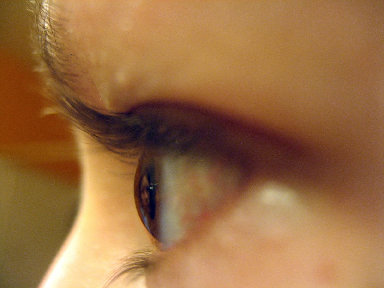Eyeball